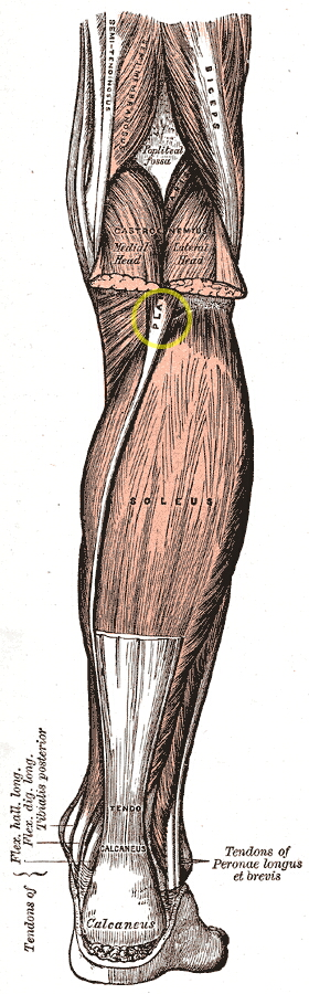 sikka